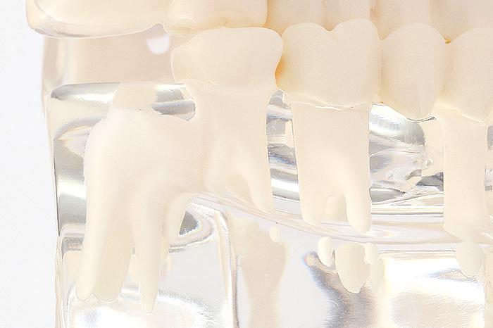 親知らずの抜歯の考え方